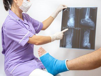 fractura-osea-pie-pierna-paciente-masculino-que-siendo-examinado-doctora-hospital_169016-7109