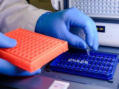 trabajador-laboratorio-colocando-puntas-pipeta-recipiente-azul-prueba-coronavirus_181624-927